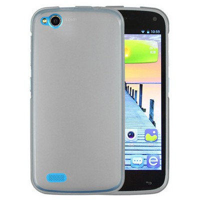 Microsonic General Mobile Discovery Kılıf Transparent Soft Siyah Cep Telefonu Kılıfı